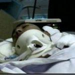 Braveheart Bundela battled for more than 4 months